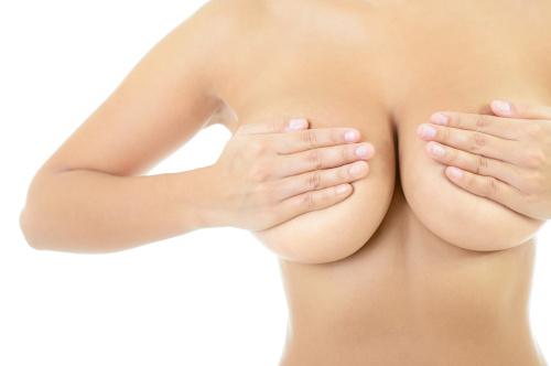 Femme à la poitrine augmentée par une chirurgie d'augmentation mammaire