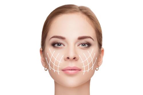 Visage d'une femme prête pour un lifting centro-facial
