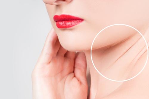 Photo d'un cou et d'un bas de visage pour montrer le lifting cervico-facial