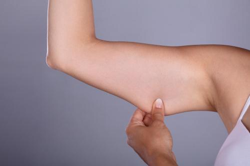 Femme qui se prend la graisse du bras pour faire un lifting de la face interne du bras