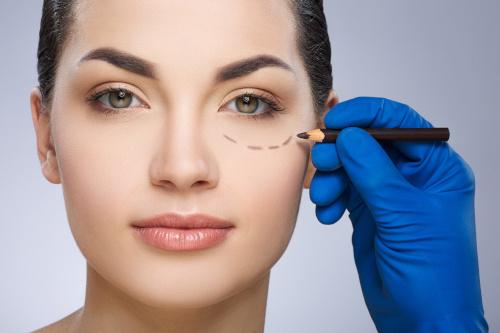 tracé sous les yeux d'une femme avant une opération de lipomodelage des cernes
