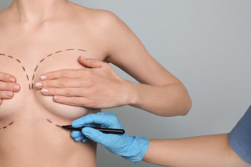 Main d'un chirugrien qui trace des traits sur la poitrine d'une femme pour l'opération de lipomodelage mammaire