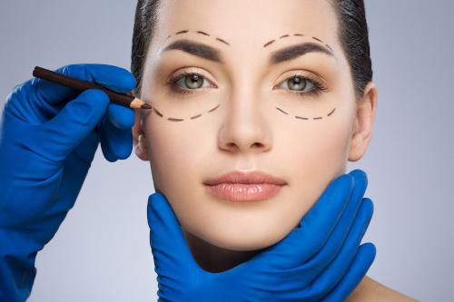 tracé dessous et dessus les yeux d'une femme avant une opération de lipostructure du regard