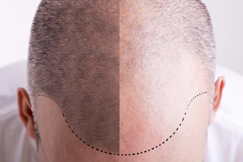Photo du dessus d'un crâne avant et après une greffe de cheveux