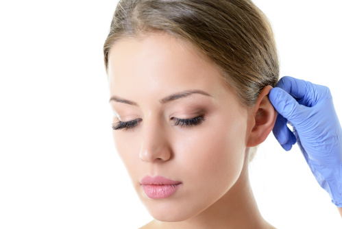Femme aux oreilles décollées qui va se faire faire une otoplastie