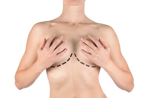 Femme se tenant les seins pour les empêcher de tomber à cause de la ptose mammaire