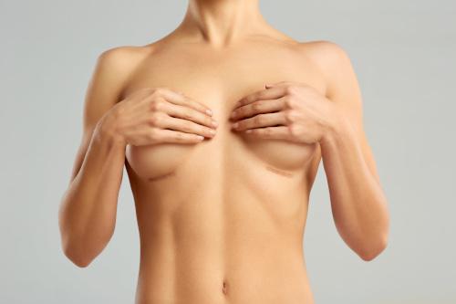 Femme ayant de plus petits seins grâce à une opération de réduction mammaire