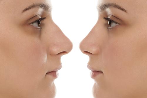 Femme vue de profil avant et après une rhinoplastie