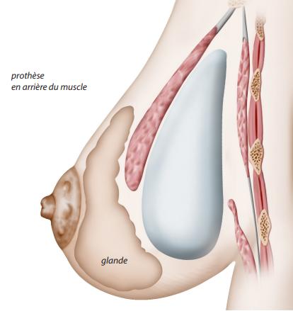 prothèse rétro musculaire