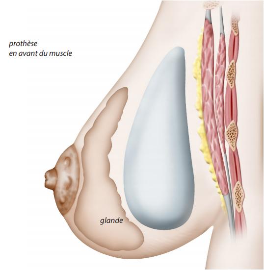 prothèse pré musculaire