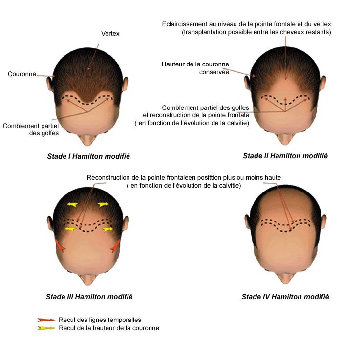 classification calvitie