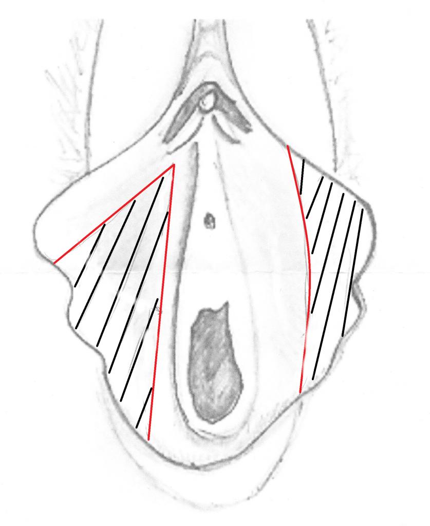 chirurgie feminine