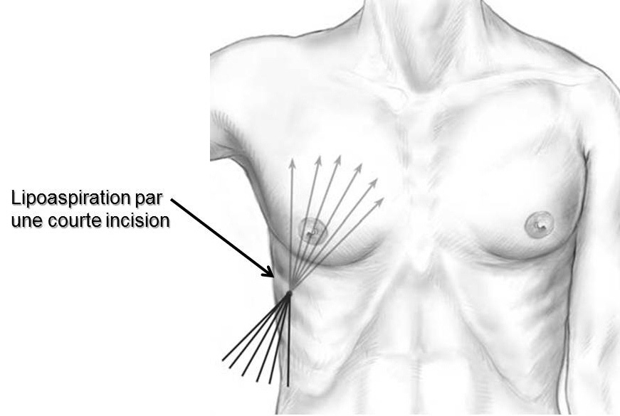 gynecomastie incisions