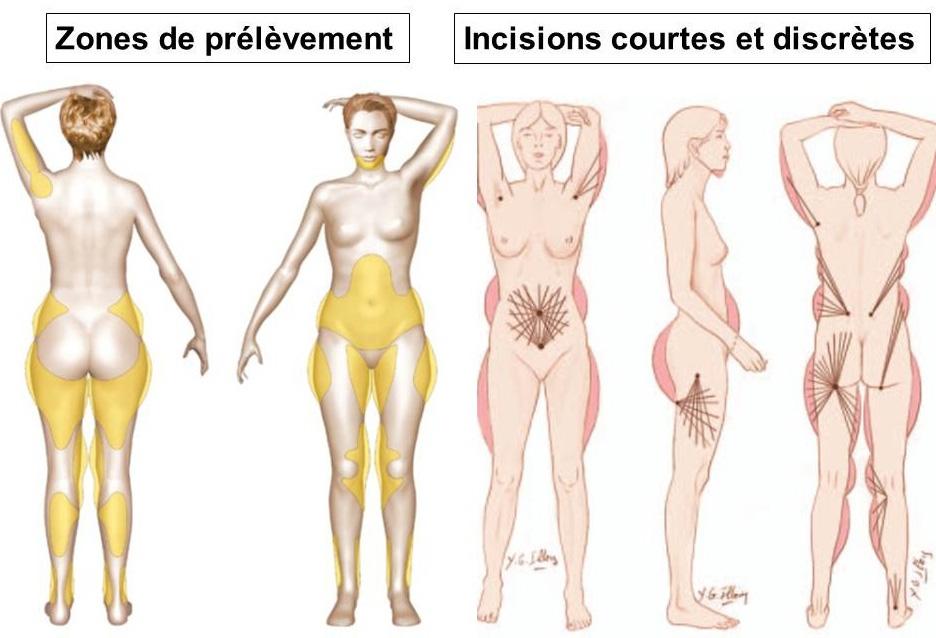 prélèvements de graisses lipostructure seins