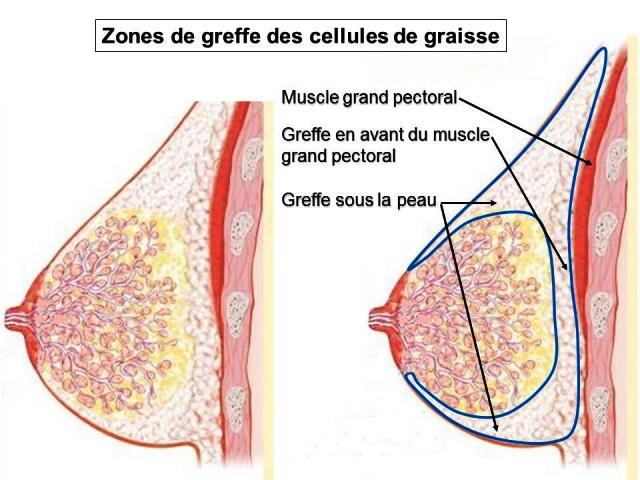 injection des graisses lipostructure seins