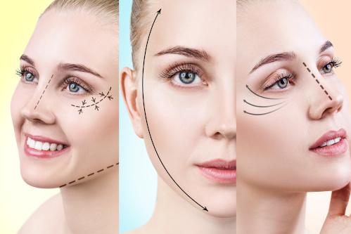 Collage de visages féminins pour montrer différents liftings du visage
