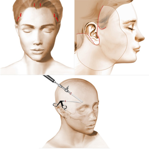 incisions lifting centro-facial
